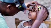 Foundation carries out 100,000th trachoma surgery in Ethiopia